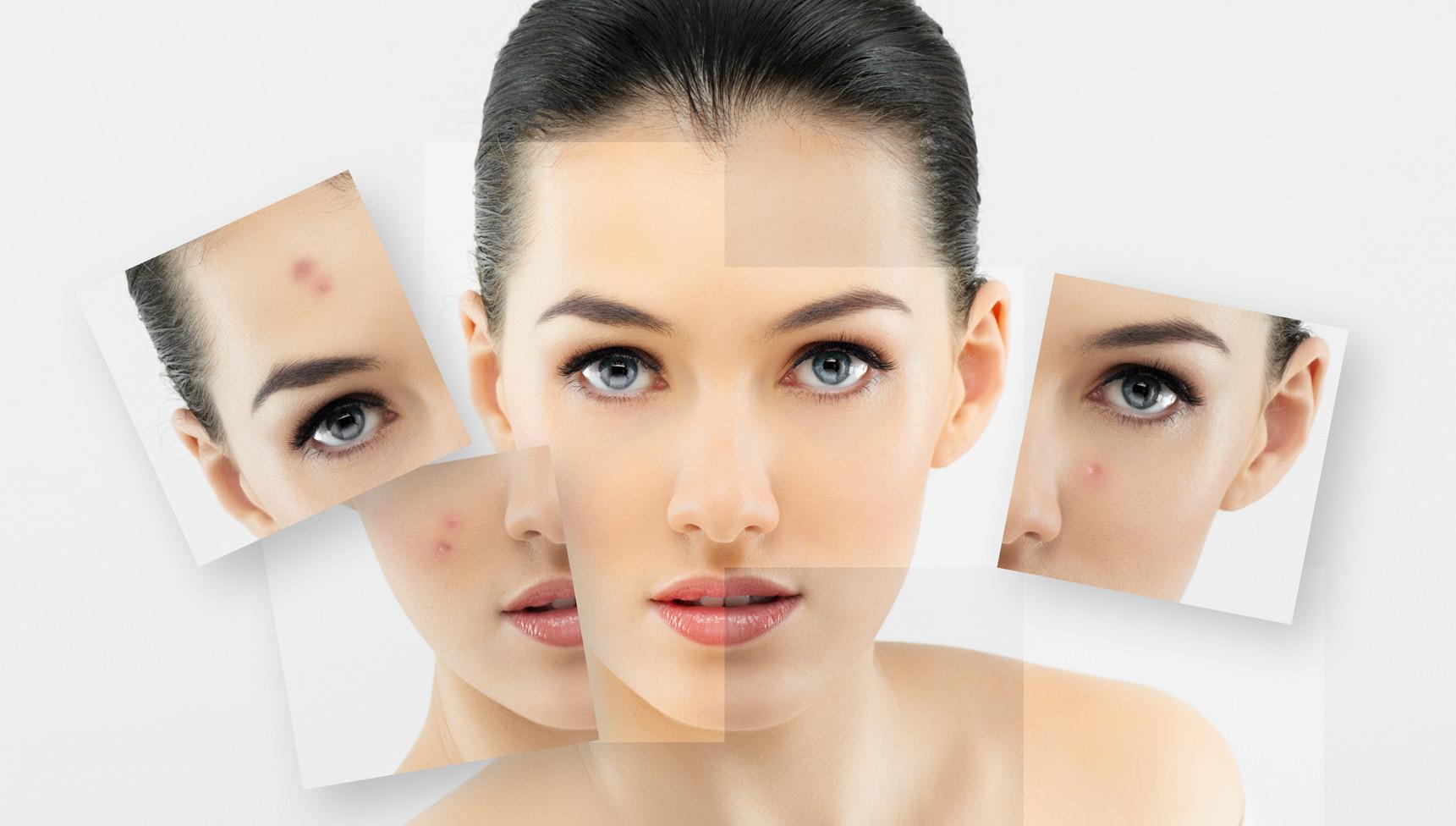 de ce apare acneea
