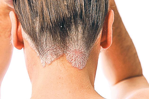atoderm dermatita atopica copii