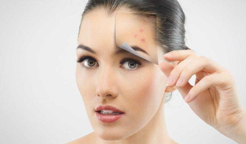 cum sa scapi de acnee